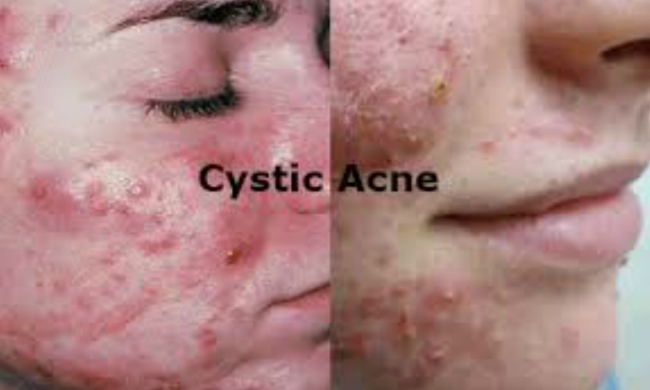 Acne that keeps on coming back