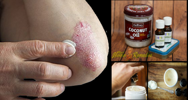 Reduces Inflammation of Skin Disease