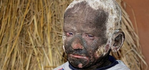 This 11-year-old boy is turning into stone due to a rare skin condition, even suffers unbearable pain