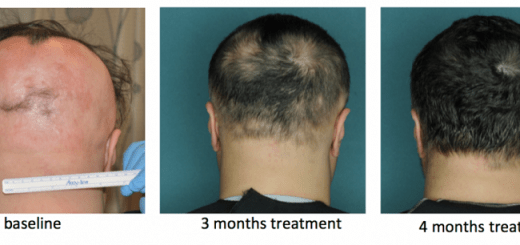 Scientists Discover new drug that fights Hair Loss and its results are phenomenal