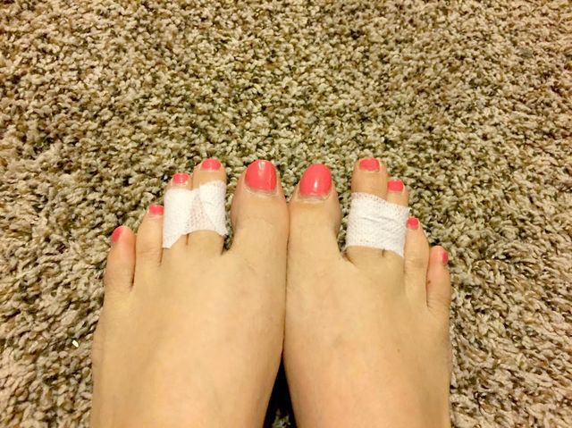 Tape your middle toes together