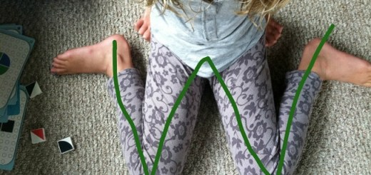 "The dangers of children sitting in a ""W"" position and the reasons why they shouldn't"