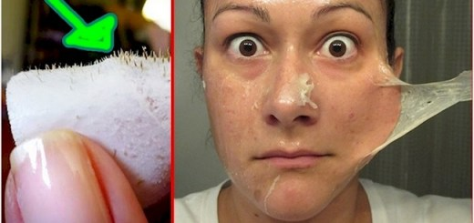Woman makes a mask from these two common ingredients to remove Black Heads in 15 minutes