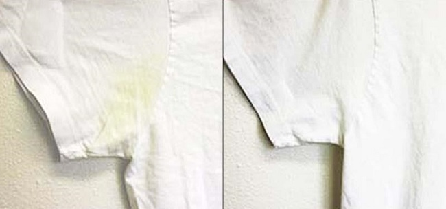 use hydrogen peroxide to whiten clothes