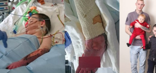 An 8 year old loses both limbs to a rare form of meningitis but is well on the way to recovery