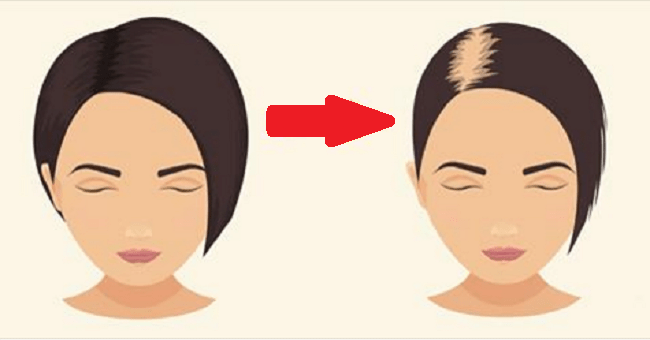 Medications that cause Hair Loss and how to get strong healthy hair
