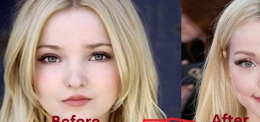 American actress Dove Cameron has undergone plastic surgery and you judge if it was a success or Epic Fail