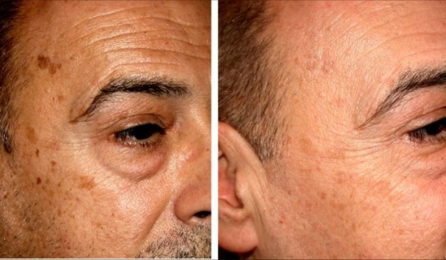 Dark spots before after