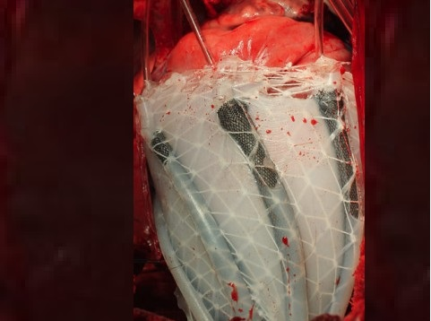 Innovative device mimics muscles of a human heart