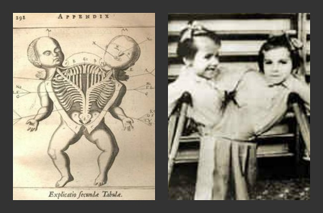 Dr. Mengele's Sadistic Experiments on Twins