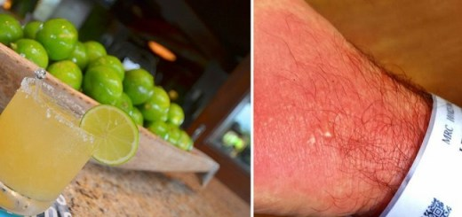 This man sends out a horrifying warning when he gets burnt after making chimichuri sauce
