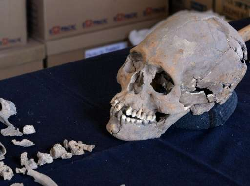 1,600-Year-Old Elongated Skull