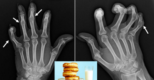 5 Common Foods to Avoid in Psoriatic Arthritis and what you should Eat to reduce the Disease