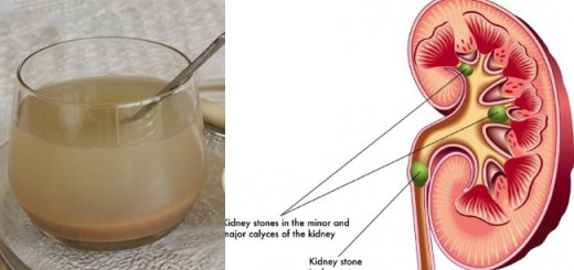 The Amazing Health Benefits If Barley Juice and How It Can Prevent Kidney Stones