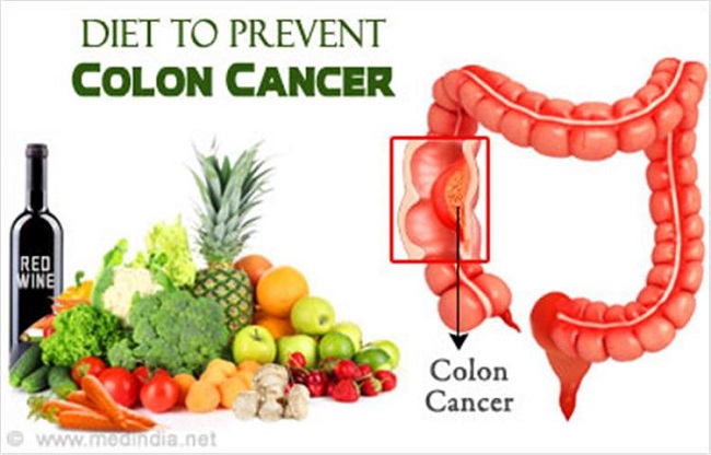 Fruits and vegetables prevent colon cancer