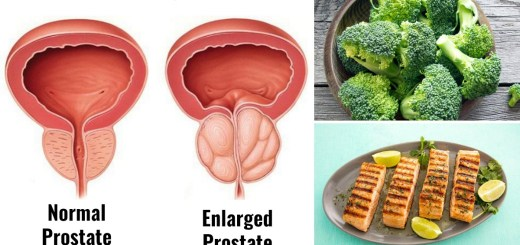 What Are the Best Foods for an Enlarged Prostate