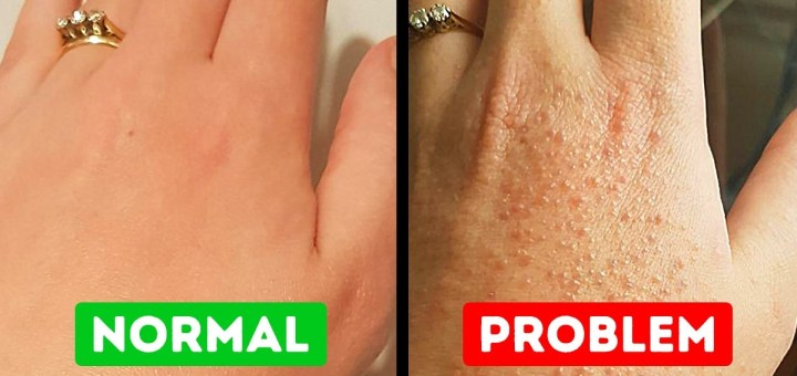 15 Everyday Things You Could Be Allergic to Without Even Being Aware Of It