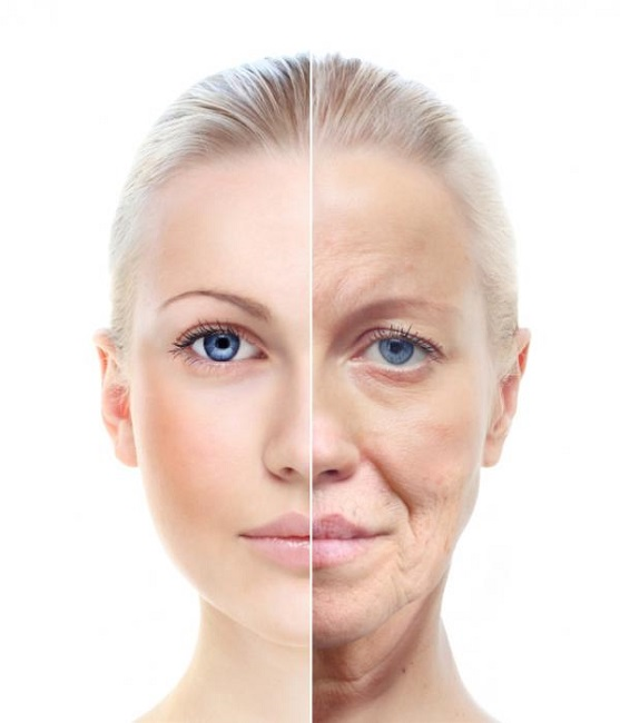 Aging and other factors