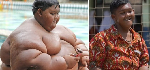 What It Felt Like To Be World's Heaviest 10 Year Old Boy And Now After Losing 100 Kgs