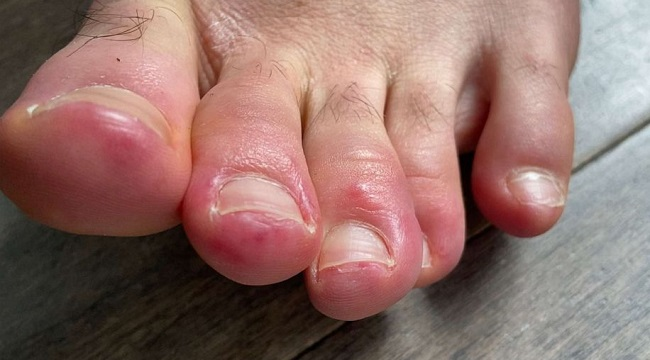 COVID Toes Among New Symptoms of Coronavirus