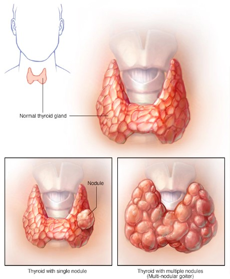 What causes Hypothyroidism