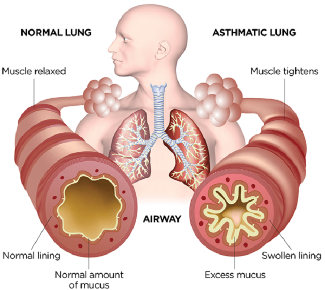 How lungs are affected by food