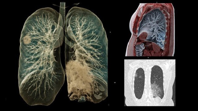 Autopsies reveal COVID-19 make lungs extremely hard