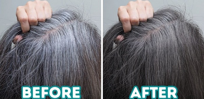 12 Home Remedies to Prevent Gray Hair