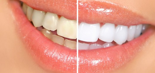10 Daily Habits That Can Stain Your Teeth to an Extent