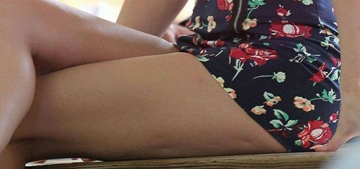 12 Unusual Body Features Which Women Worry About