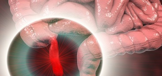 10 Warning Signs That Indicate That Your Appendix Can Rupture At Anytime