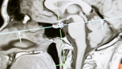 دراسة تحذّر من عادة شائعة قد تؤدي إلى تقليص دماغك وتراجع في الذاكرة