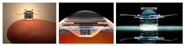 Mini Telescope Inserted Into Eye Makes Man See Again