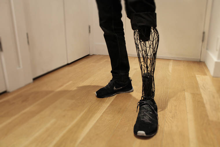 The World of Prosthetics Gets Even More Incredible With Help from 3D Printing