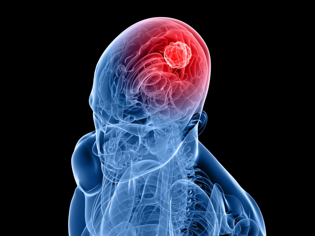 Researchers Find an Enzyme That Feeds Brain Tumors