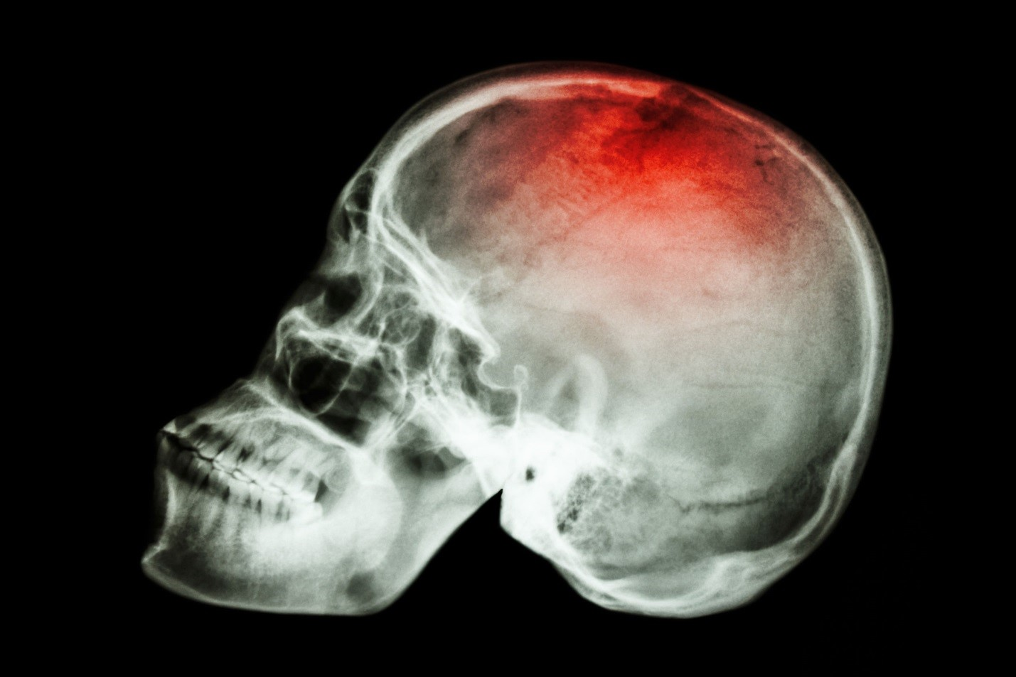 New Experimental Drug Reverses Memory Loss due to Brain Injury