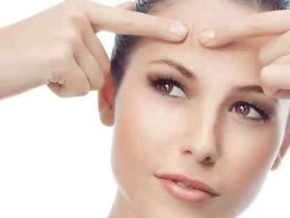 dandelion-for-acne