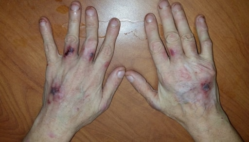 Popped Blood Vessel Hand