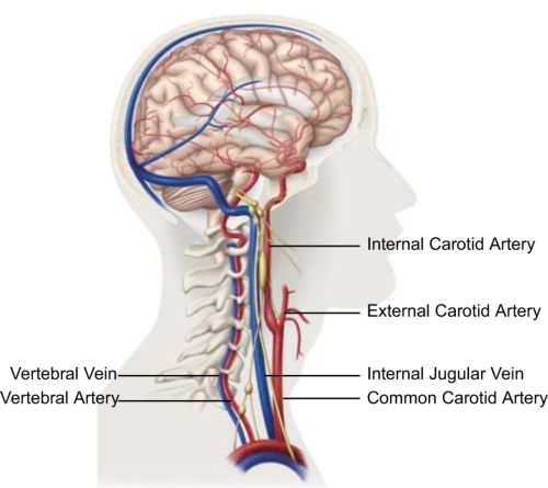 small resolution of cervical hinging and migraines