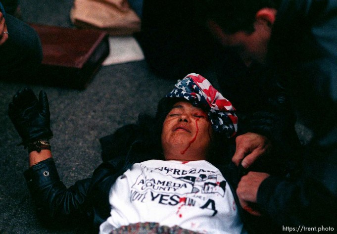 Girl who was hit in head with a rock is bandaged with US flag during riots and protests.