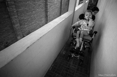 Hexi pushes Doris. Formerly conjoined twins, Bessy and Doris Gonzales.