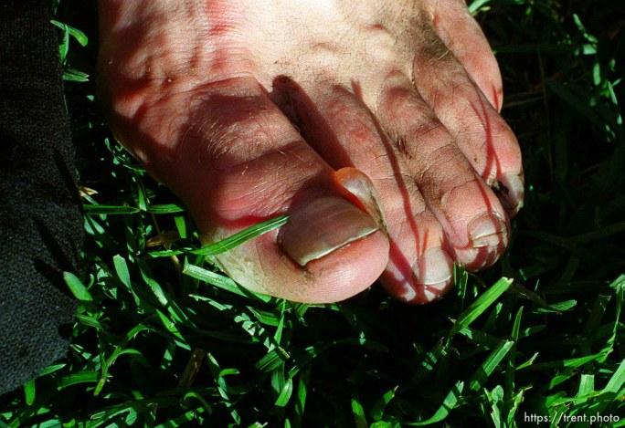 A large blister on Garett Graubins' big toe at the end of the race, Sundance Ski Resort. Wasatch 100 Endurance Run.