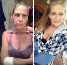addicts-diary-before-after-photo-5dd65976549d3__700