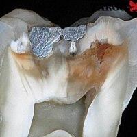 Откакто се доверих на този метод, зъбите ми са здрави, а за кариеси забравих!