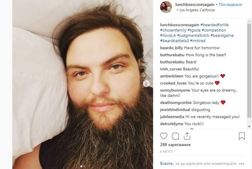 Жени с бради, на какво се дължи (СНИМКИ)