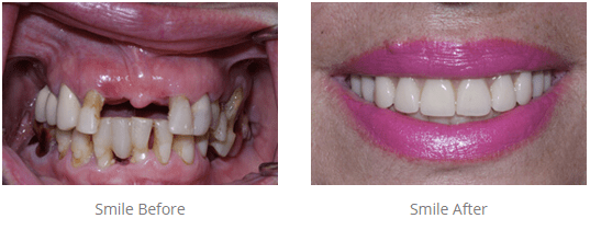 Before and after teeth in a day procedure