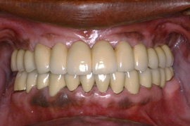 Removable Complete Denture on the Top (before)