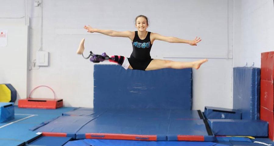 Emma Neagu, în vârstă de 15 ani, alege ca piciorul să-i fie îndepărtat și reașezat invers, ca o articulație de genunchi, astfel încât să poată continua evoluțiile gimnastice