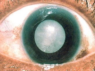 eyes-cataract