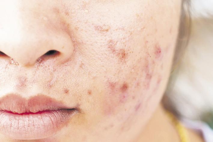 acne in autunno
